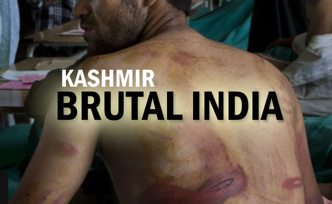 Kashmir: India an inherently autocratic Country!